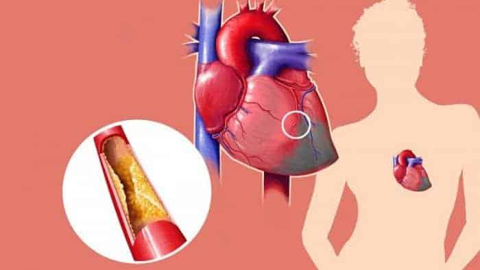 जानिए कोलेस्ट्रॉल के बारे में सब कुछ कोलेस्ट्रोल की मात्रा कोलेस्ट्रोल के लक्षण कोलेस्ट्रोल क्या है कोलेस्ट्रोल का आयुर्वेदिक इलाज एच डी एल कोलेस्ट्रोल कोलेस्ट्रोल कैसे कम करें कोलेस्ट्रोल कैसे घटाएं कोलेस्ट्रॉल कितना होना चाहिए कोलेस्ट्रॉल रेंज इन हिंदी कोलेस्ट्रॉल का स्तर ldl cholesterol कितना होना चाहिए कोलेस्ट्रॉल पर नियंत्रण कोलेस्ट्रॉल के लक्षण कोलेस्ट्रॉल की जांच कोलेस्ट्रॉल लेवल हाई कोलेस्ट्रॉल के लक्षण कोलेस्ट्रॉल कैसे कम करें कोलेस्ट्रॉल क्या है कोलेस्ट्रॉल मेडिसिन कोलेस्ट्रॉल क्या है हिंदी कोलेस्ट्रॉल मीनिंग इन हिंदी कोलेस्ट्रॉल कम करने की आयुर्वेदिक दवा कोलेस्ट्रोल कम करने के उपाय कोलेस्ट्रॉल कम करने के प्राकृतिक उपाय कोलेस्ट्रॉल कम करने की मेडिसिन कोलेस्ट्रॉल कम करने के लिए क्या खाना चाहिए कोलेस्ट्रॉल कम करने की दवा वी एल डी एल कैसे एचडीएल वृद्धि एलडीएल एचडीएल अनुपात कैसे हम अपने एलडीएल और एचडीएल कोलेस्ट्रॉल सुधार कर सकते हैं अच्छा कोलेस्ट्रॉल निम्न घनत्व वसा कोलेस्ट्रौल कोलेस्ट्रोल कैसे कम करें राजीव दीक्षित कोलेस्ट्रॉल रेंज