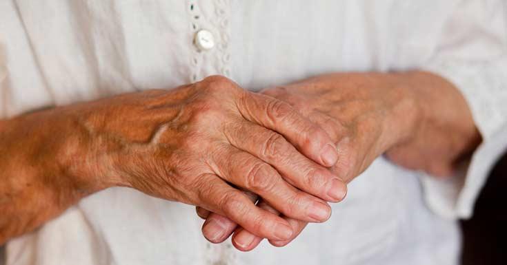 आर्थराइटिस arthritis ka desi ayurvedic ilaj upay nuskha