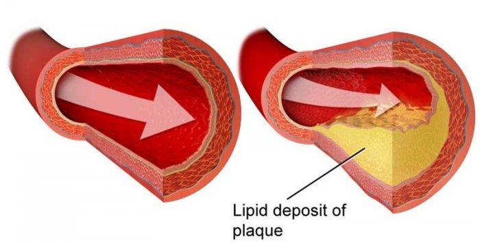 कोलेस्ट्रॉल कम करने के शोध आधारित 8 उपाय cholesterol kam karne ke upay tarike gharelu ilaj