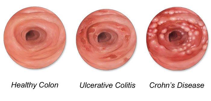 आँतों की सूजन (IBD) - लक्षण और इलाज